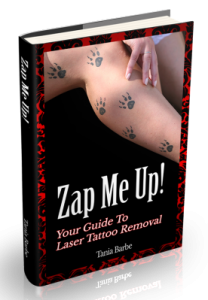 Zap Me Up Your Guide to Laser Tattoo Removal
